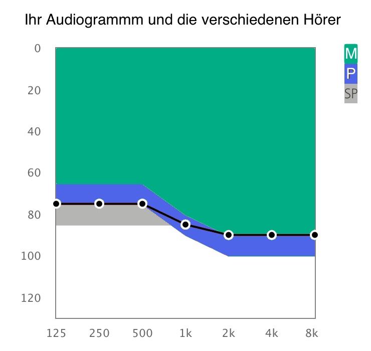Das Bild zeigt ein Audiogramm. Die unterschiedlichen Farben zeigen die unterschiedlichen Leistungen von Hörern bei Im Ohr Hörgeräten.