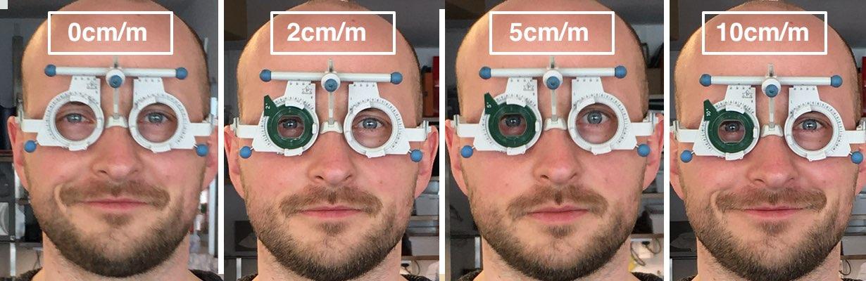 Das Bild zeigt Michael Penczek und die Augenstellung mit einer Prismenbrille