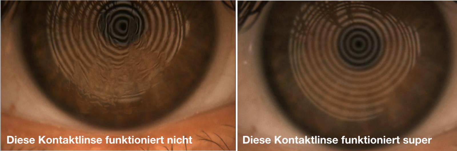 Links eine Kontaktlinse, die nicht mit dem Tränenfilm harmoniert. Auf der rechten Seite sieht alles wunderbar aus.
