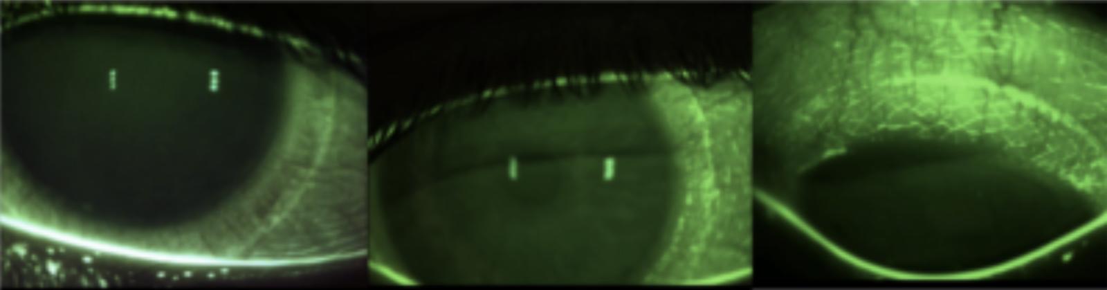 Abdrücke weicher Kontaktlinsen. Sichtbar gemacht mit Fluoreszin