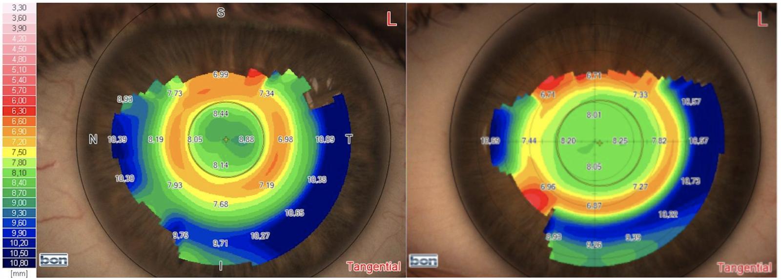 Das Bild zeigt linnks und rechts eine Hornhauttopographie nach einer Anpassung einer Nachtlinse. Die Ergebnisse unterscheiden sich sichtbar.