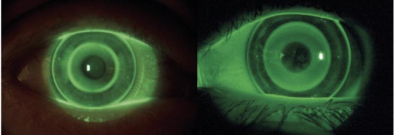 Links eine herkömmliche Nachtlinse. Rechts die Nachtlinse zur Myopiekontrolle