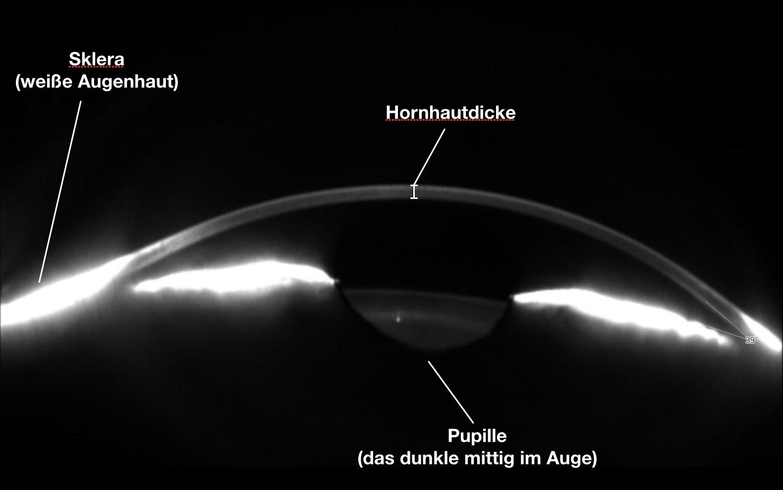 Das Bild zeigt die Hornhautdicke bei einem Auge in der Seitenansicht im Schnitt mit einer Scheimpflugkamera