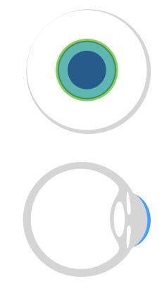 Hier sehen Sie eine große formstabile Kontaktlinse, die für die Anpassung von Hornhautdegenerationen verwendet werden kann.