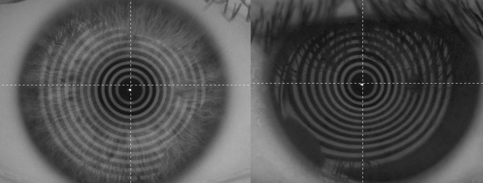 Hier zeigt der Gleitsichtspezialist ein unauffälliges Auge links und rechts eine auffällige Hornhaut, die nicht optimal mit einer Gleitsichtbrille funktionieren wird.