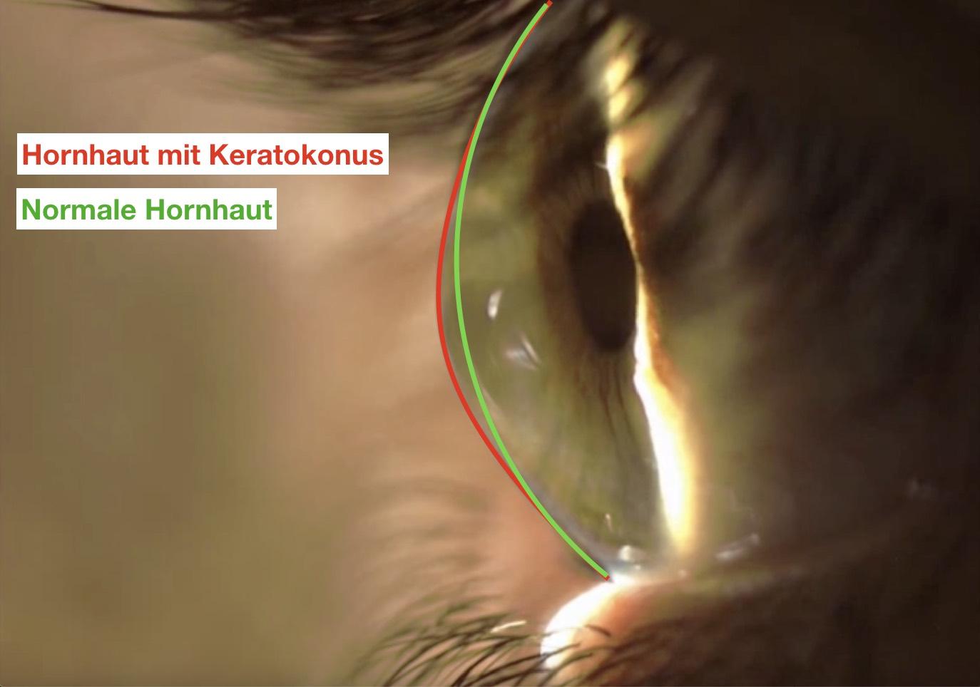 Das Bild zeigt eine normale Hornhaut von der Form im Vergleich zu einer Form mit Keratokonus