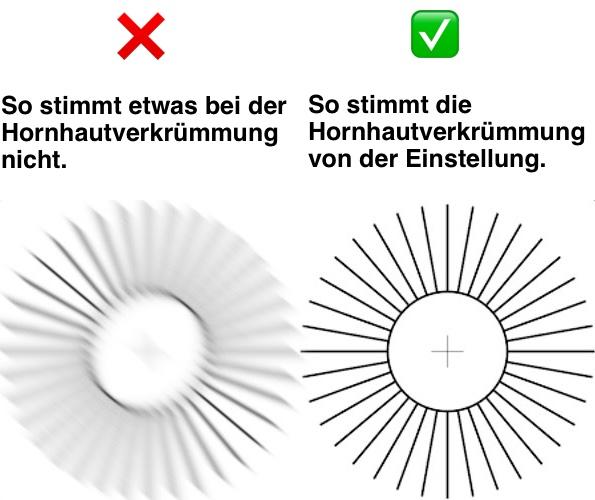 Das Bild zeigt links ein Bild einer nicht auskorrigierten Hornhautverkrümmung. rechts ist ein perfektes Bild zu sehen.