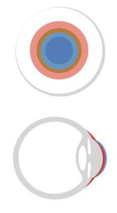 Das Huckepacksystem kann bei einem Keratokonus bei einer Unverträglichkeit von reinen formstabilen Kontaktlinsen angewandt werden