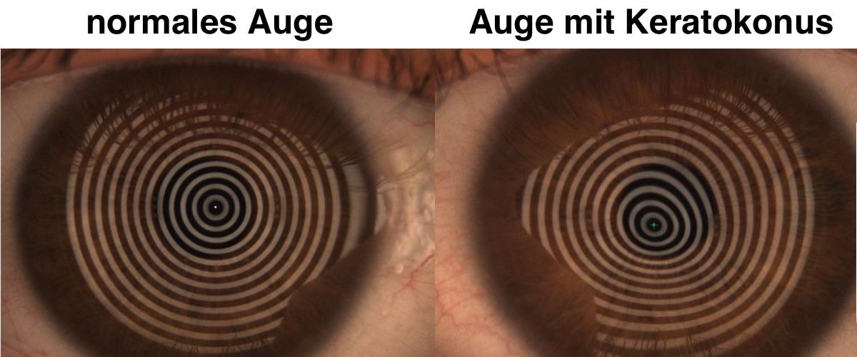 Das Bild zeigt die unterschiedlichen Spiegelungen auf einer Hornhaut mit Keratokonus und einer herkömmlichen Hornhaut