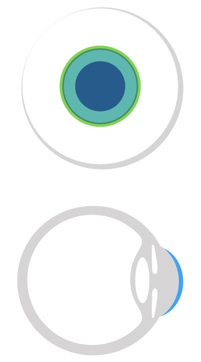 Das Bild zeigt eine Modern angepasste formstabile Kontaktlinse, die einen Großteil der Hornhaut bedeckt.