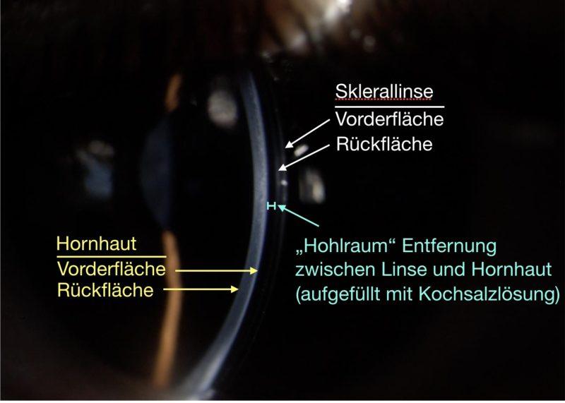 Auf dem Bild ist der Abstand der Kontaktlinse zur Hornhaut zu erkennen