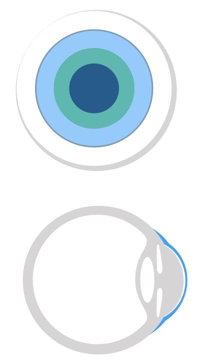 Das Bild zeigt die Auflage von Skleralllinsen oder Skleralschlaen. Diese überbrücken die Hornhaut.