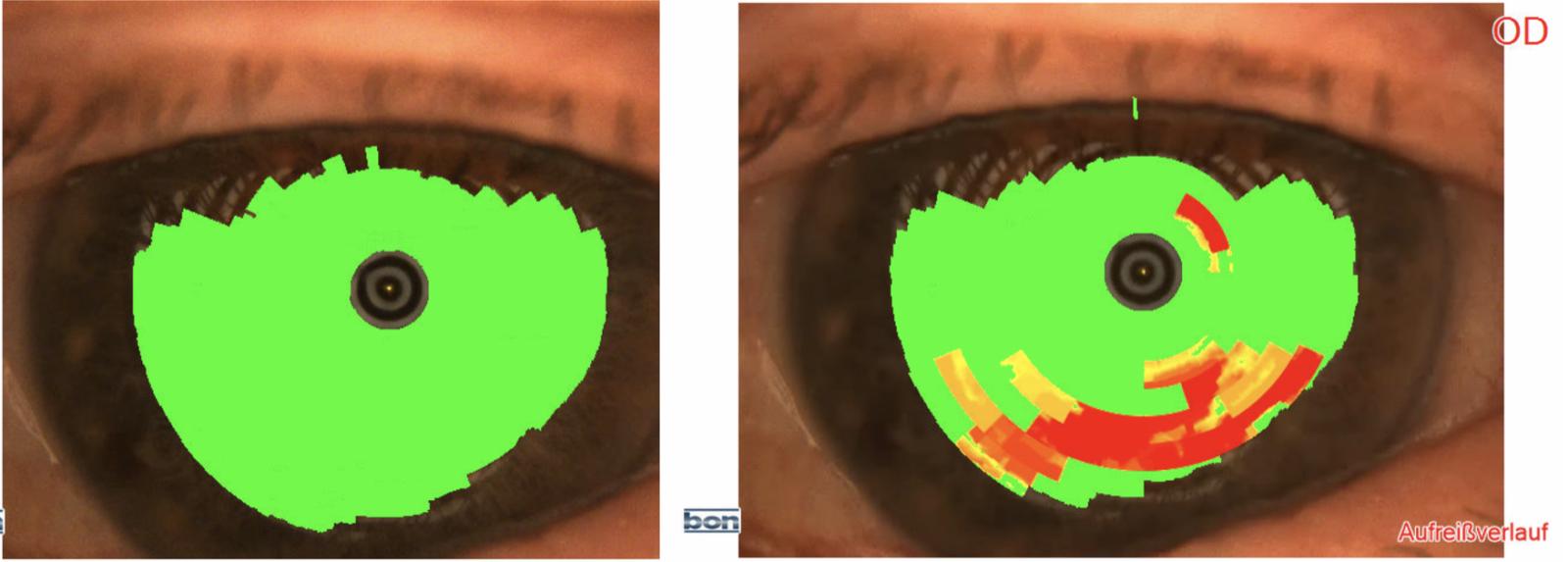 Das Bild zeigt links einen sehr gleichmäßigen Tränenfilm und rechts einen bereits abgetrpckneten Tränenfilm.