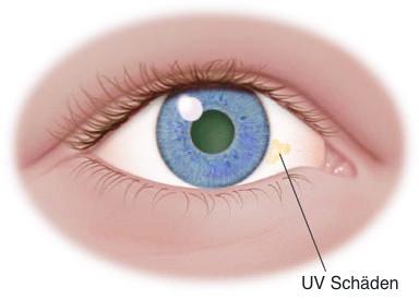 Das Bild zeigt UV Schäden