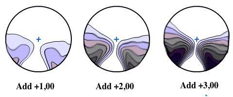 unscharfer Rand beim Gleitsichtglas mit unterschiedlicher Addition