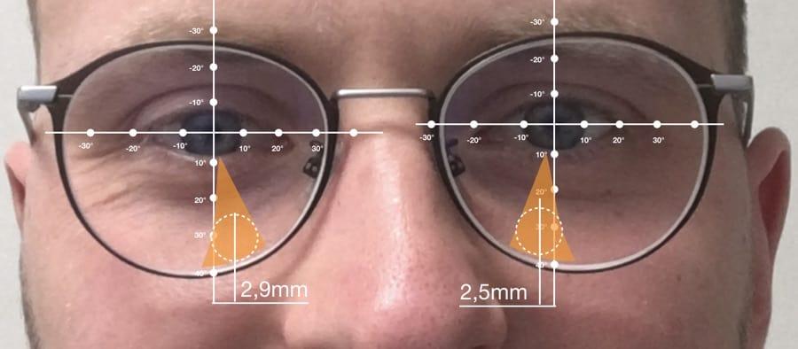 Sichtfeld einer Varilux X visible