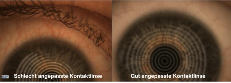 Links sieht man das Auge nachdem eine schlecht angepasste weiche Kontaktlinse getragen wurde. Rechts daneben sieht man das Auge 1 Jahre nachdem Nachtlinsen getragen wurden.