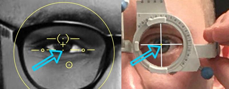 Das Bild zeigt Unterschiede der Blickpunkte, die bei Anisometropie zu Problemen führen könnten.