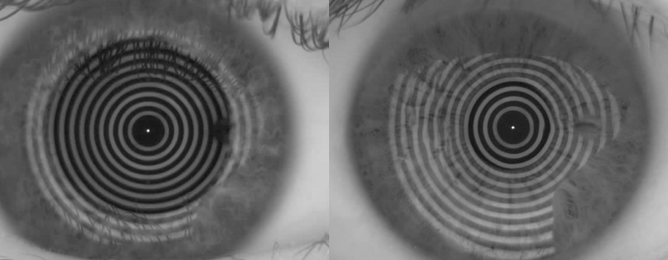 Hier zeigt Ihr Gleitsichtspezialist Ihnen das unterschiedliche Abtrocknen zweier Augen.