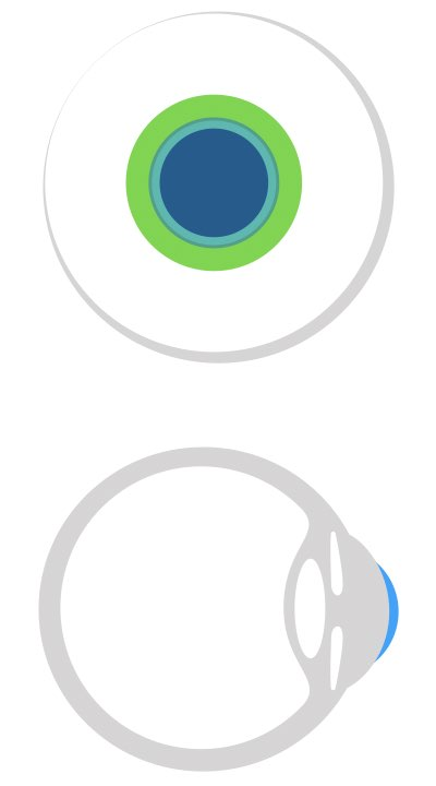 Das Bild zeigt eine klassisch angepasste formstabile Kontaktlinse, die die Auflage nur auf der Hornhaut hat und hier nicht alles bedeckt.